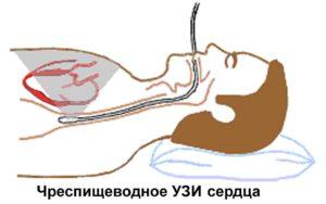 Чреспищеводная эхокардиография ЧПЭхоКГ