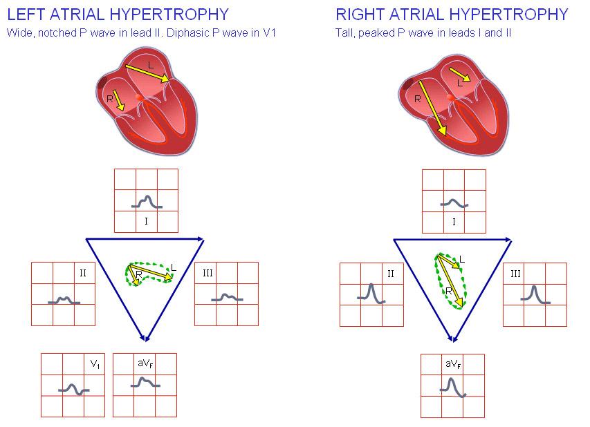 Гипертрофия правого предсердия причины симптомы диагностика
