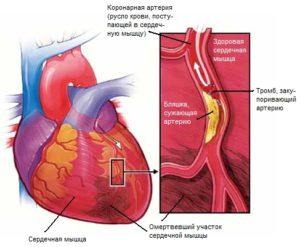 Реабилитация после инфаркта миокарда