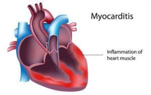 Миокардит причины возникновения классификация