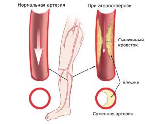Облитерирующий атеросклероз сосудов нижних конечностей причины признаки диагностика лечение и профилактика