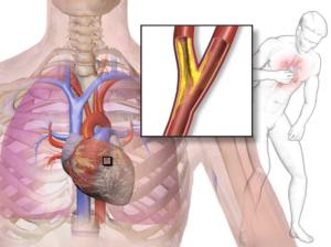 Приступ стенокардии признаки неотложная помощь