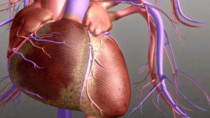 Диффузный кардиосклероз причины симптомы принципы диагностики и лечения