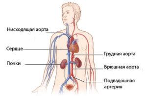 Атеросклероз аорты сердца причины симптомы принципы диагностики и лечения