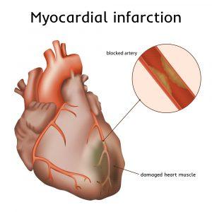 Инфаркт миокарда проявления неотложная помощь