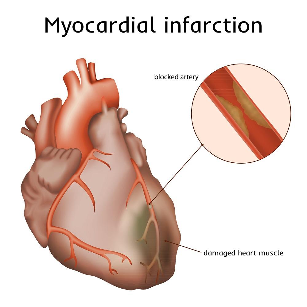 Первая неотложная помощь при инфаркте миокарда в домашних условиях человеку алгоритм действий до приезда скорой помощи