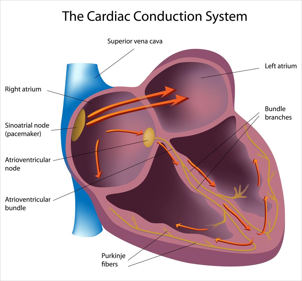 Синдром wpw на ЭКГ: что это? Рекомендации кардиолога