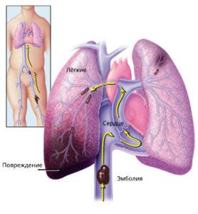 Тромбоэмболия легочной артерии симптомы и лечение