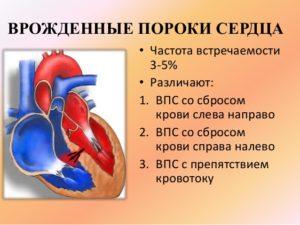 Пороки сердца у новорожденных