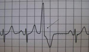 Экстрасистолия желудочковая причины признаки лечение