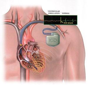 Трепетание и фибрилляция желудочков симптомы и лечение
