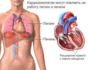 Кардиомиопатии симптомы диагностика и лечение