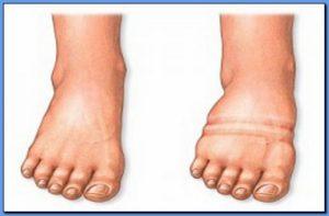 Периферические отеки причины диагностика и лечение
