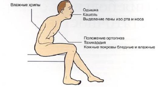 Отек легких симптомы неотложная помощь
