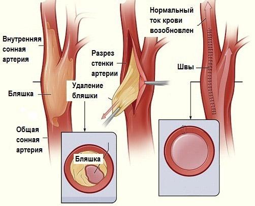 Атеросклероз сосудов головного мозга лечение и профилактика