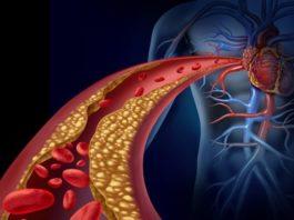 Эссенциальная гипертензия симптомы лечение