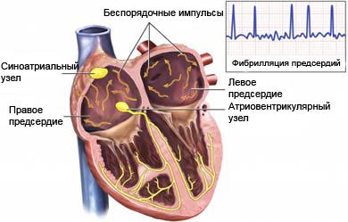 Мерцательная аритмия симптомы причины