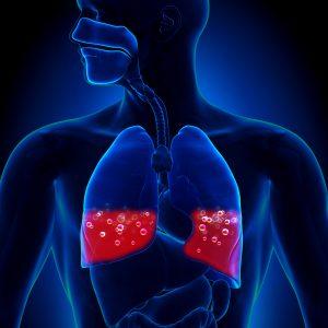 Лечение отека легких в стационаре