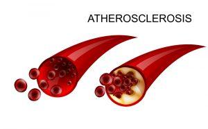 Небольшое повышение холестерина в крови