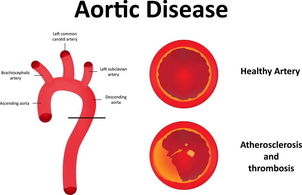Атеросклероз аорты сердца: симптомы и лечение - Профилактика и ...