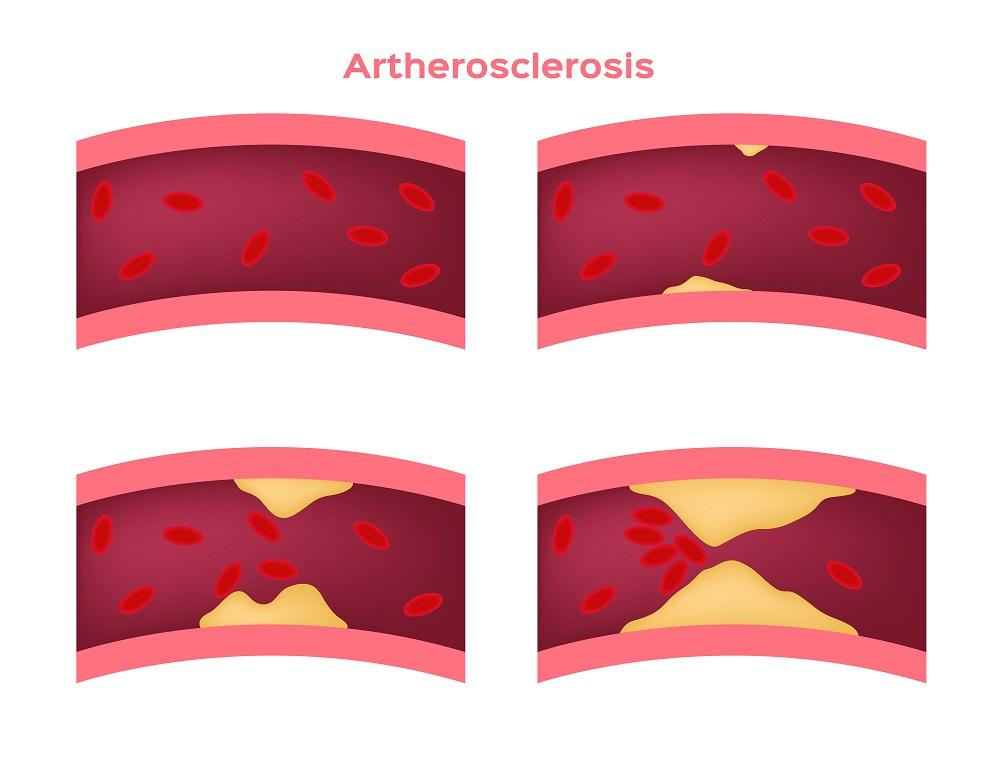 Облитерирующий атеросклероз нижних конечностей лечение