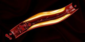 Хирургическое лечение атеросклероза - Про холестерин
