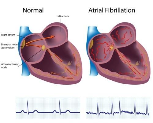 Мерцательная аритмия: симптомы, причины