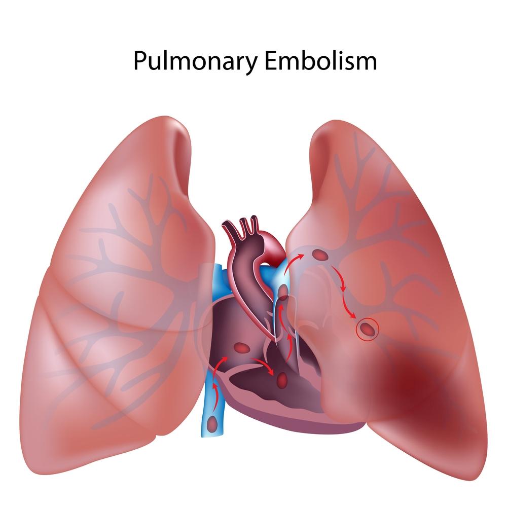 инфаркт миокарда и кардиогенный шок