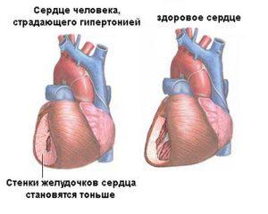 Почему возникает кардиомегалия