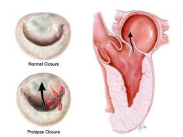Пролапс митрального клапана симптомы лечение и прогноз