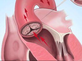 Cтеноз аортального клапана причины симптомы диагностика и лечения