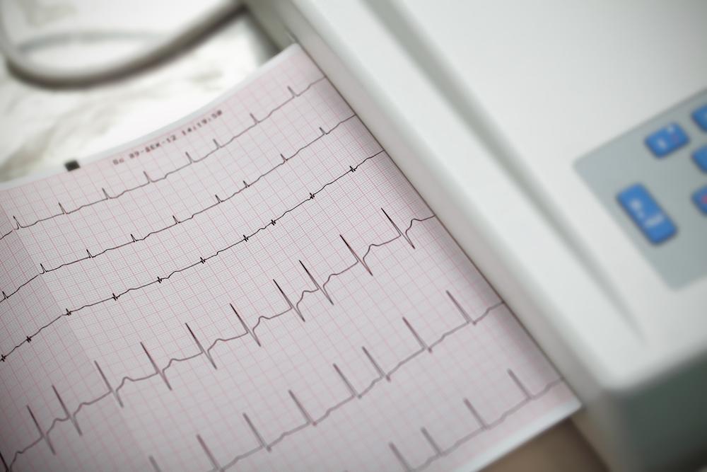 Сердечные гликозиды при хронической застойной сердечной недостаточности
