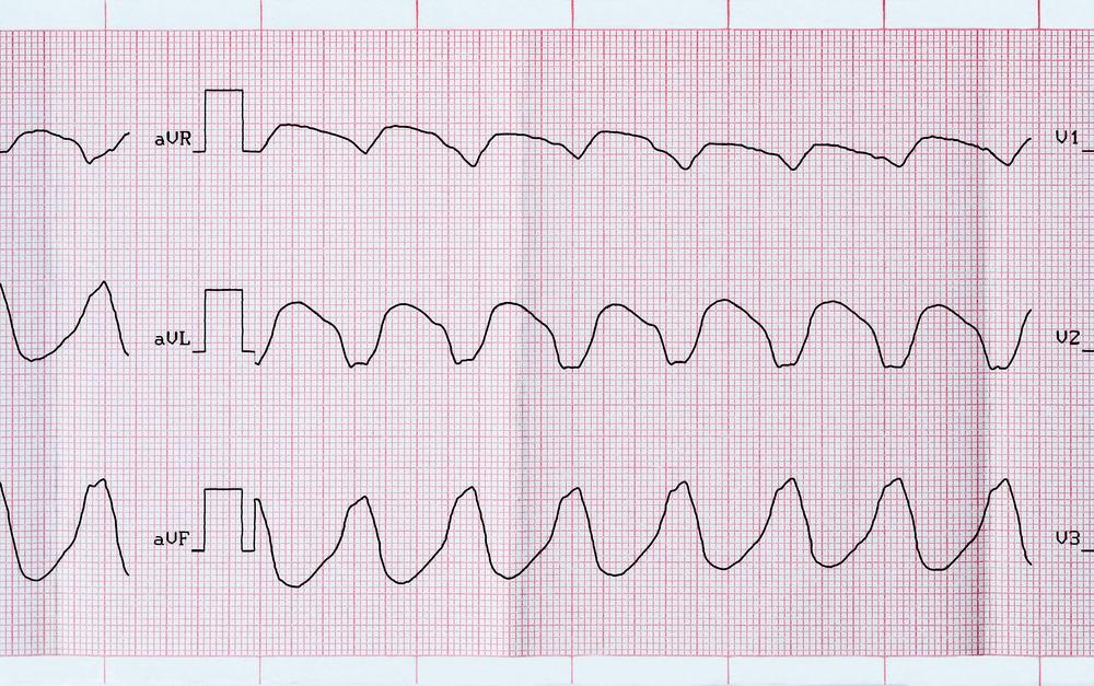 Суправентрикулярная тахикардия - что это такое. Суправентрикулярная тахикардия у взрослых и детей, нормы сердцебиения на ЭКГ.