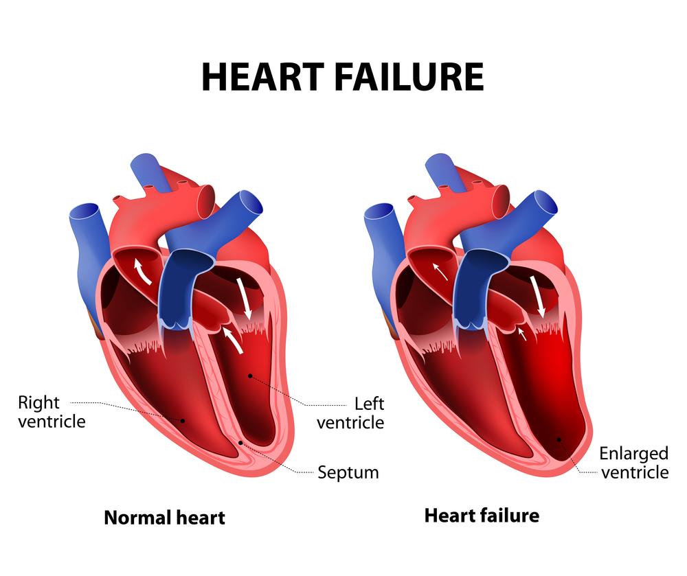 Как снять одышку при сердечной недостаточности