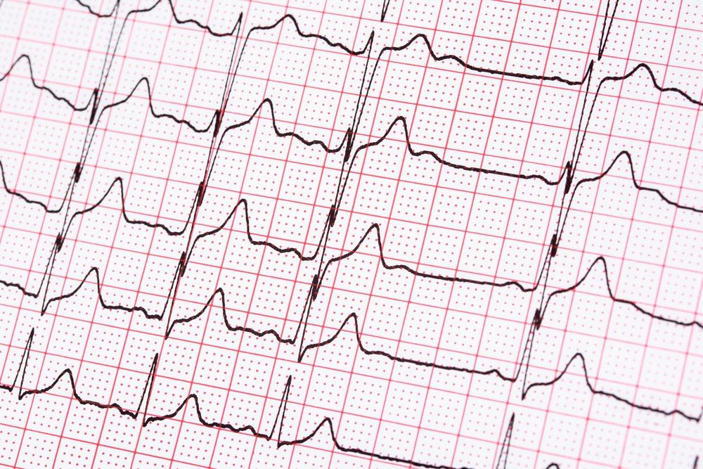 Наджелудочковая экстрасистолия: причины, признаки, лечение