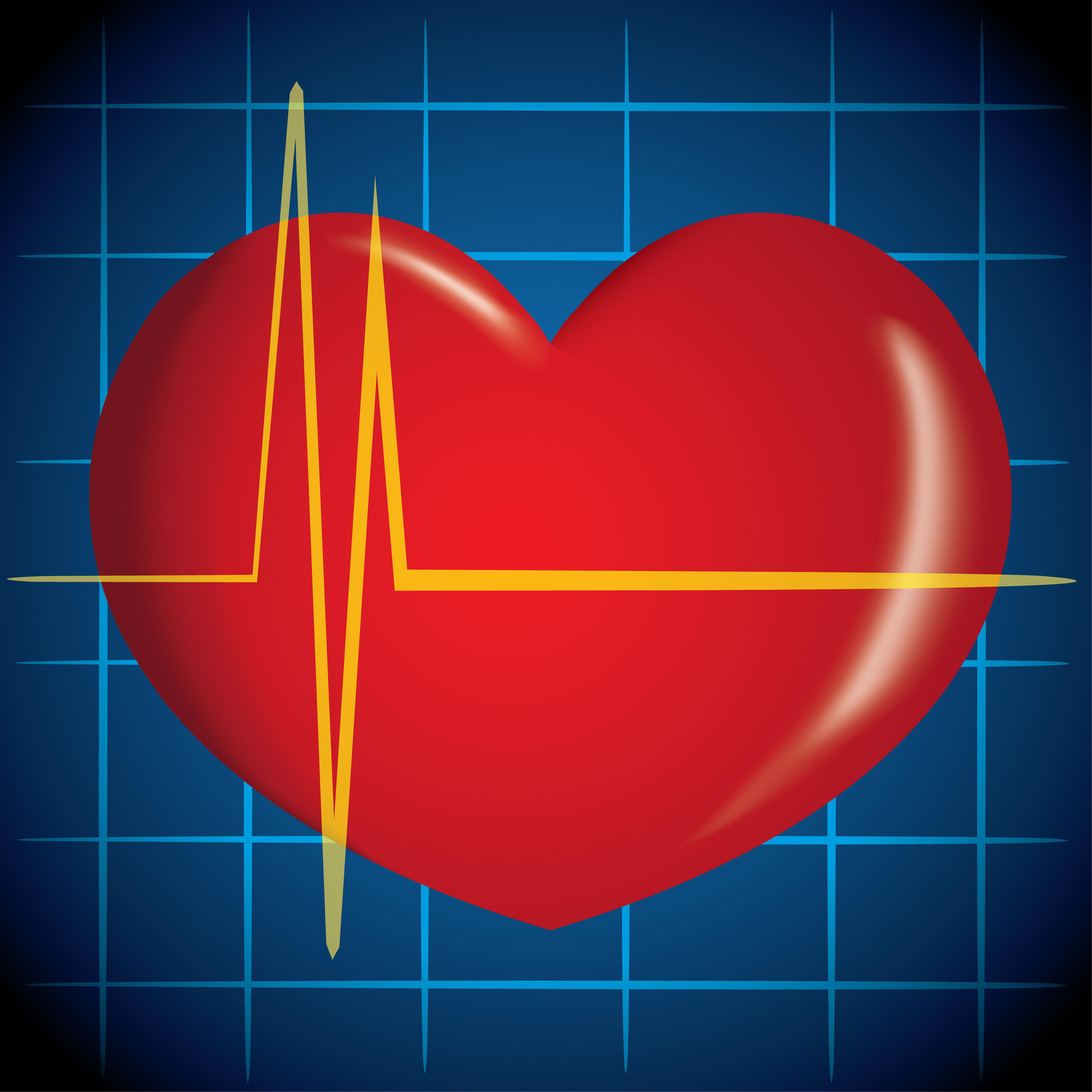 На что влияет аритмия сердца