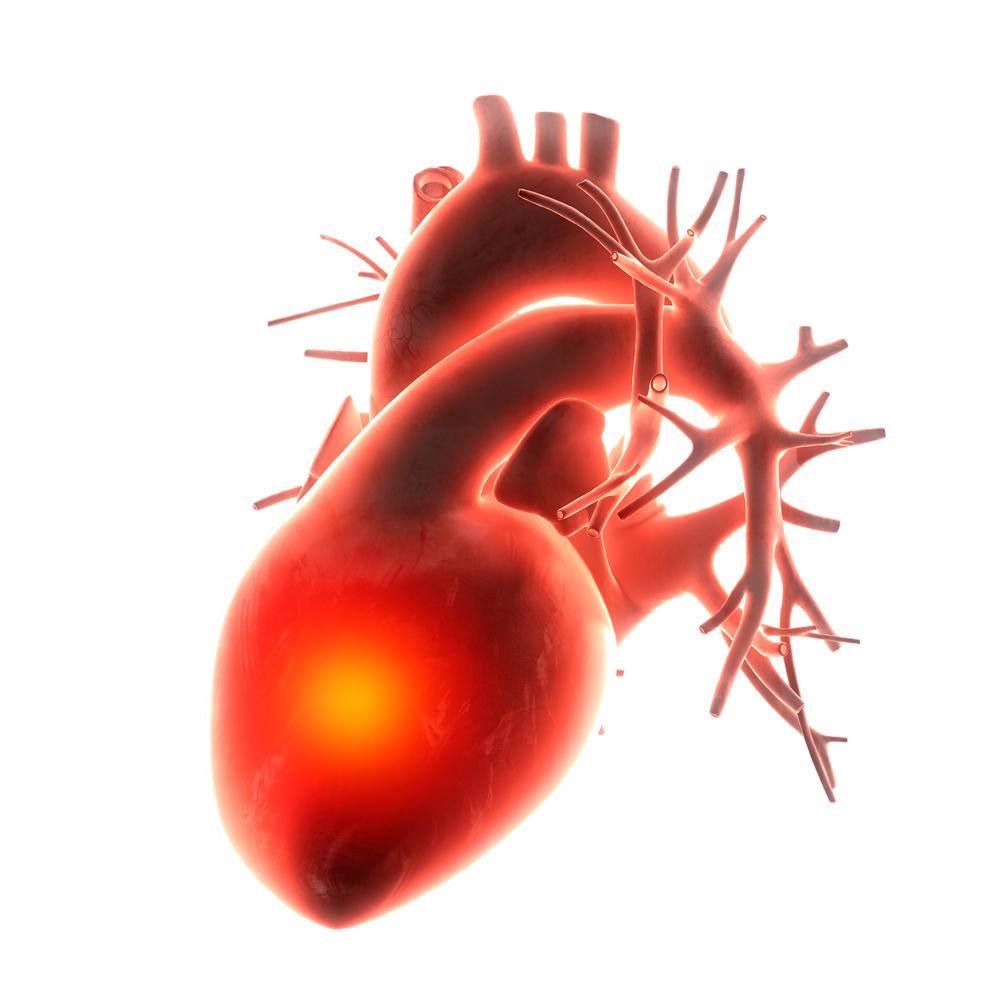 Недостаточность всех клапанов сердца