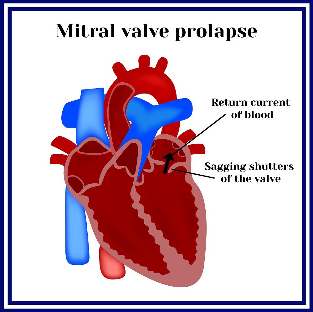 Митральный клапан сердца как лечить