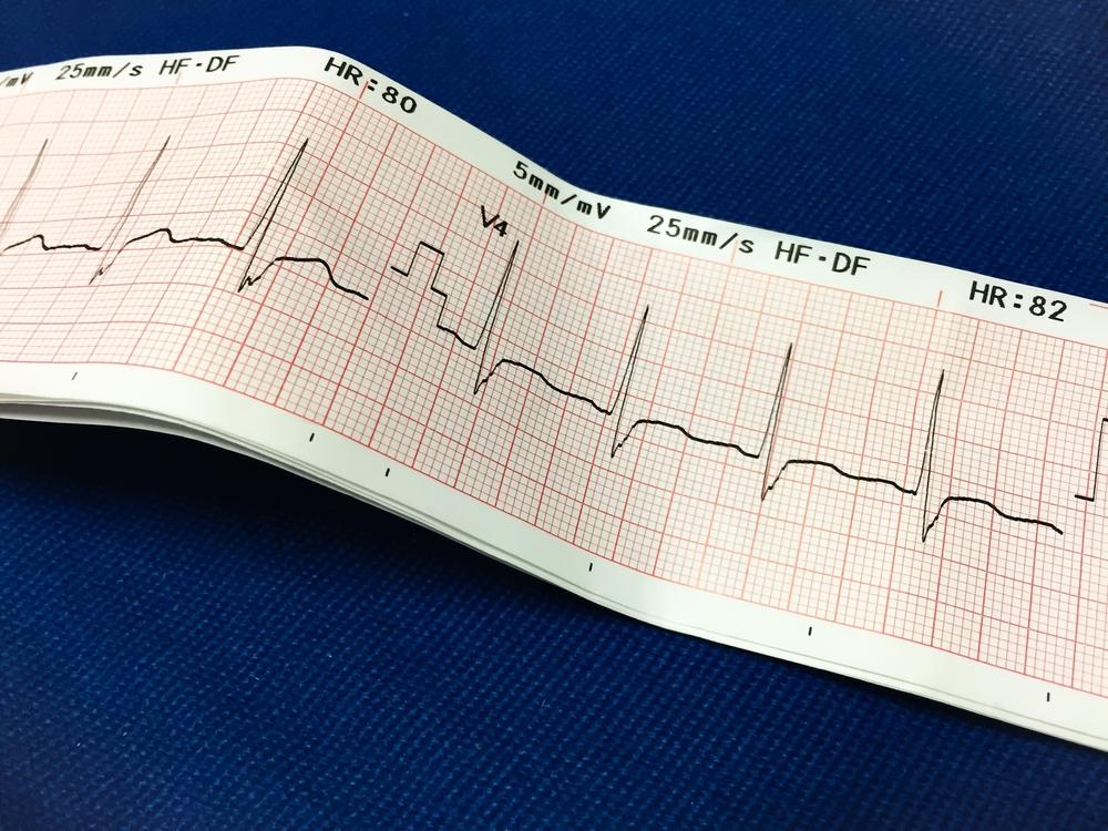 Как прочитать кардиограмму сердца самостоятельно