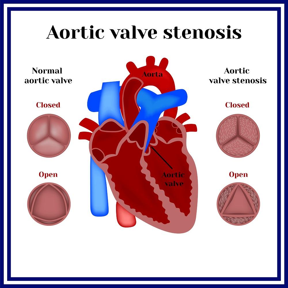 Cтеноз аортального клапана: причины, симптомы, диагностика и лечение