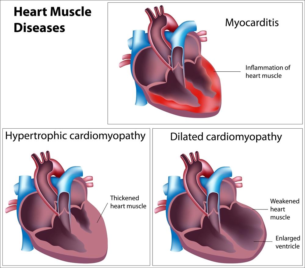 Кардиомегалия у человека что это причины болезни лечение синдрома бычьего сердца