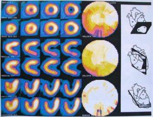 Что такое сцинтиграфия миокарда