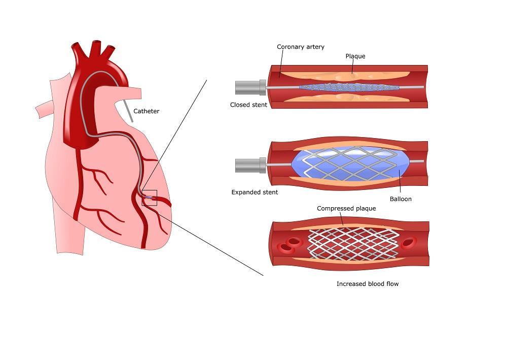 как очистить кровеносные сосуды от холестерина