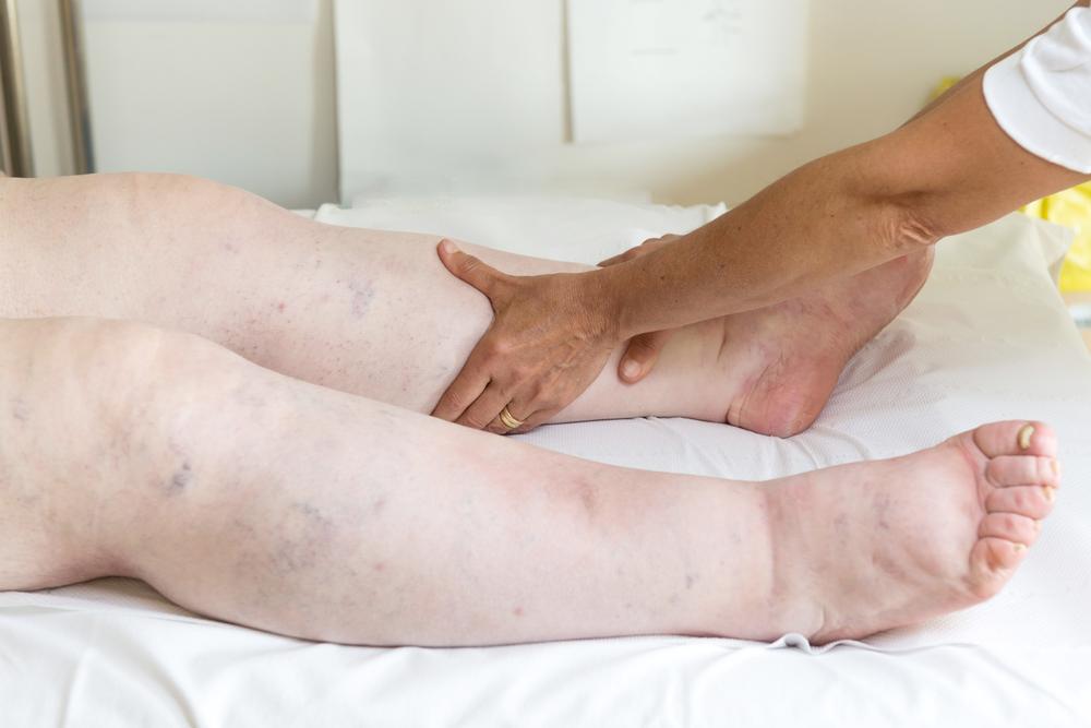 Отеки ног при сердечной недостаточности: лечение отека легких при сердечной недостаточности