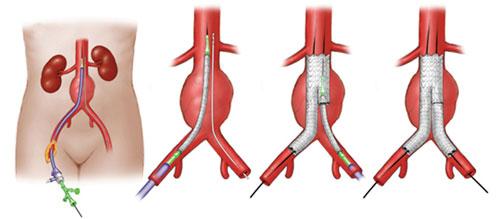 Аневризма аорты брюшной полости симптомы и лечение
