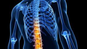 Болезнь Бехтерева симптомы причины и механизм возникновения