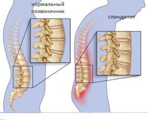 Болезнь Бехтерева диагностика и лечение