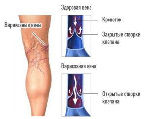 Варикозная болезнь нижних конечностей причины признаки диагностика и лечение