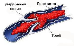 Посттромбофлебитический синдром причины симптомы и лечение