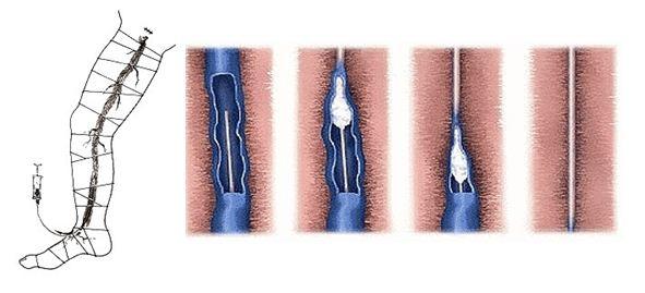 Трофическая язва на ноге лечение профилактика